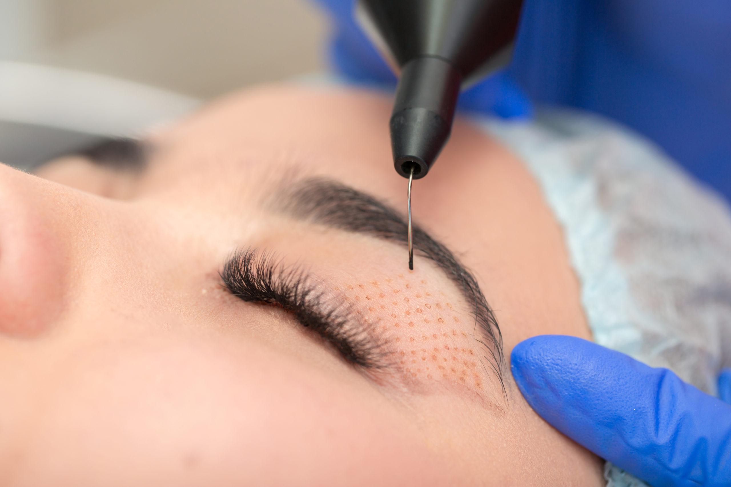 Droopy eyelids? The no-knife eye lift